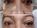 Mezoterapia igłowa - Salon Kosmetyczny Nowy Targ