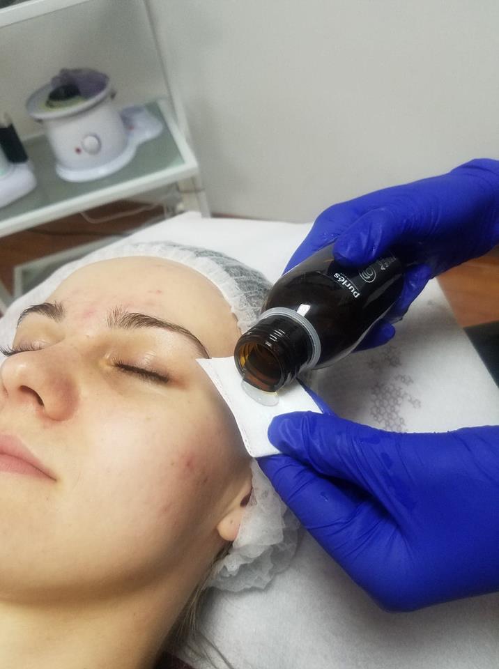 Jak pielęgnować twarz po kwasach - Blog Kosmetyczny