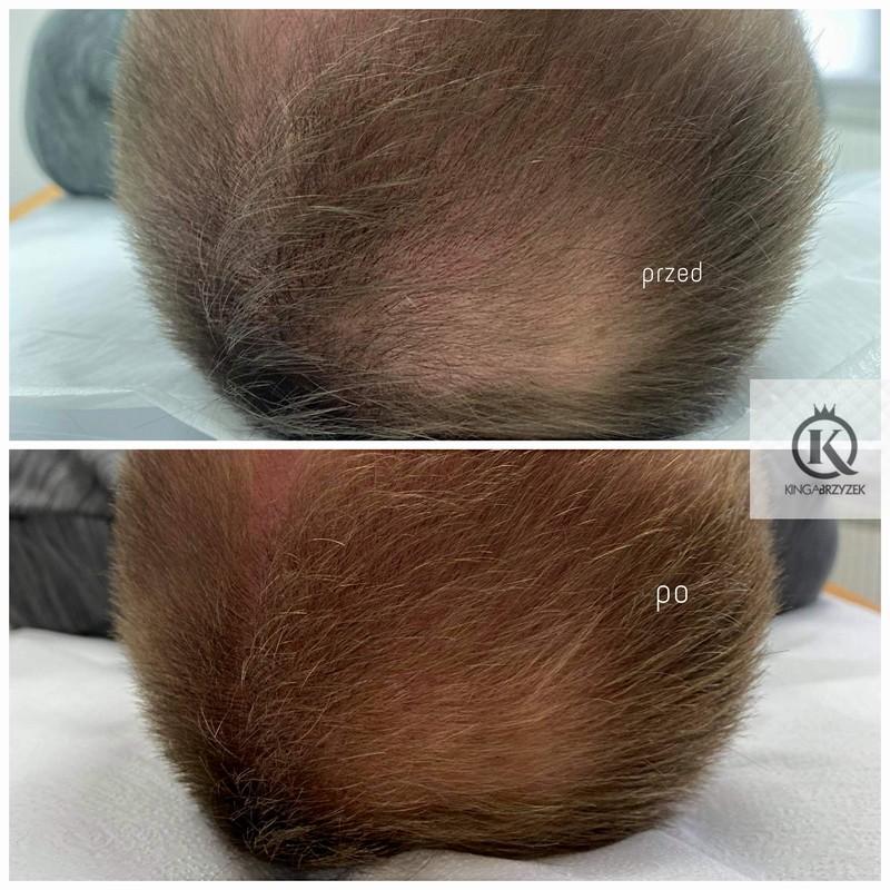 Wypadanie włosów Nowy Targ
